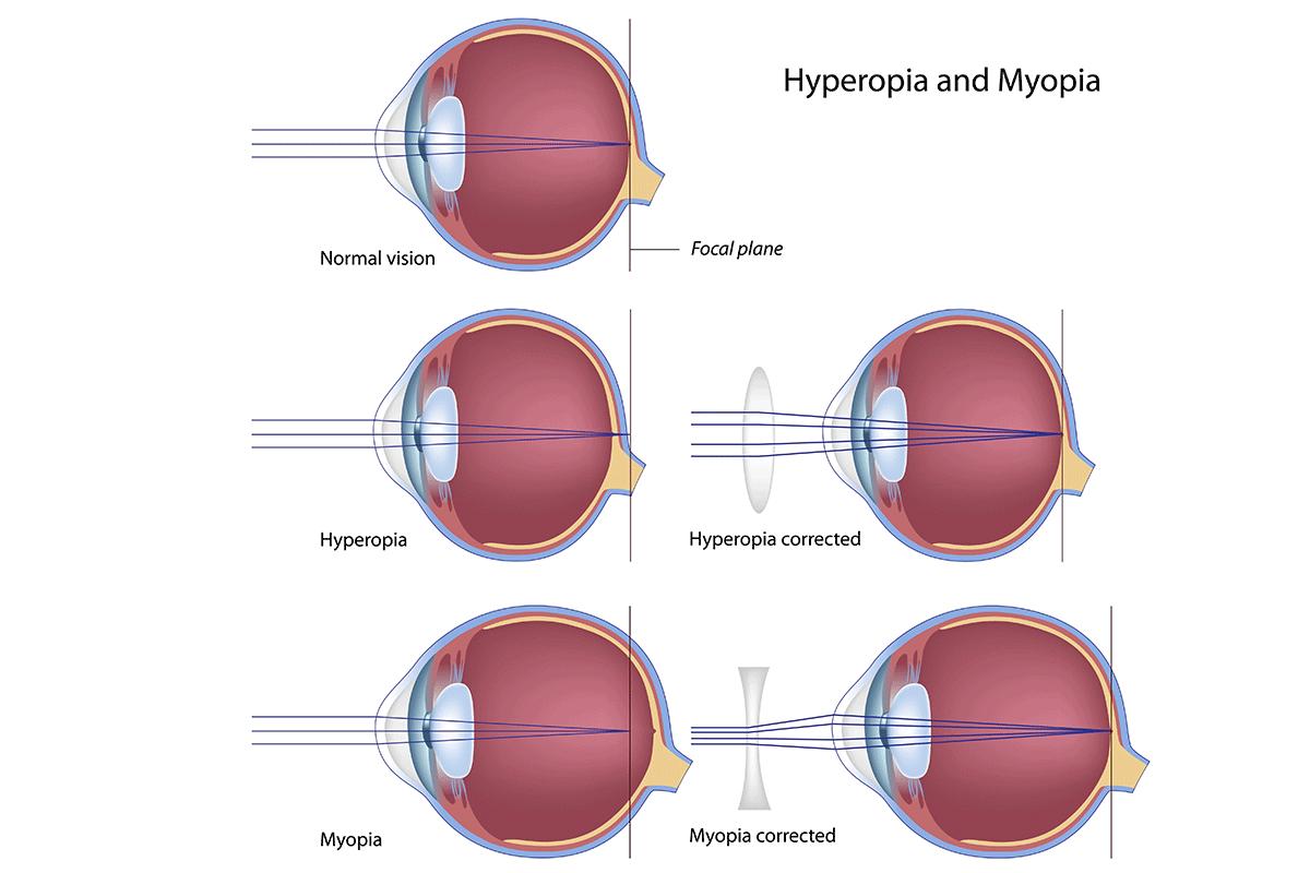 Hyperopia and Myopia Visual Aide